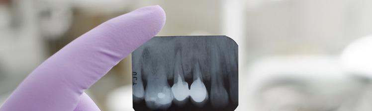 restorative-dentisrt